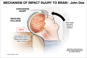 Mechanism of Impact Injury to Brain