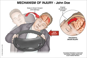 Mechanism of Impact Injury to Brain - Motor Vehicle Accident