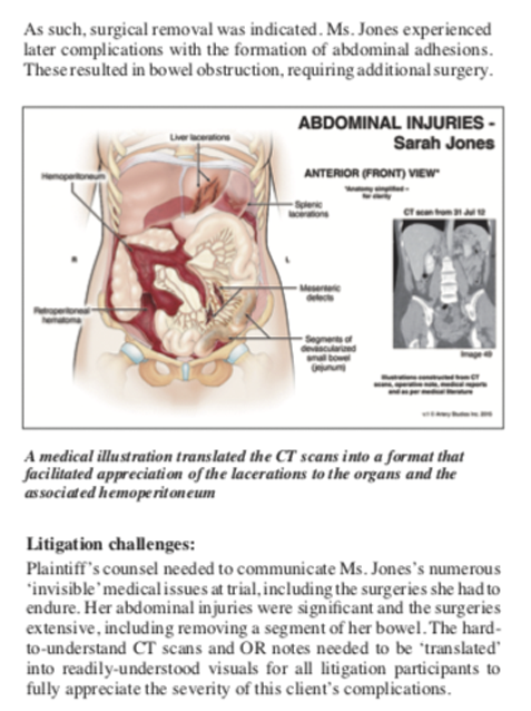 Illustrated Medicine: Abdominal Trauma and Surgery