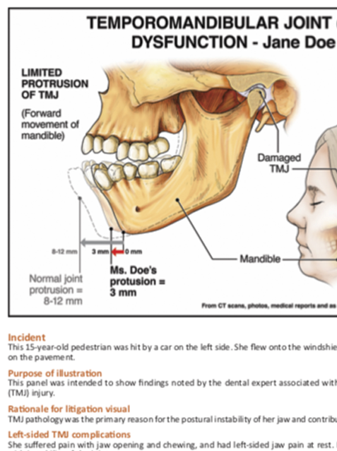 Complications from TMJ Trauma