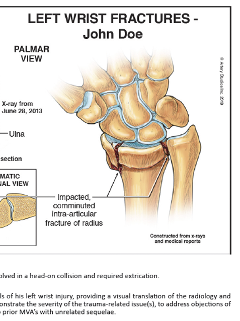 Illustrated Medicine: Case Study - Intra-Articular Wrist Fracture