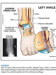 Illustrated Medicine: Case Study – Trimalleolar Fracture-Dislocation