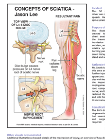 Illustrated Medicine: Case Study – Trauma-Induced Sciatica